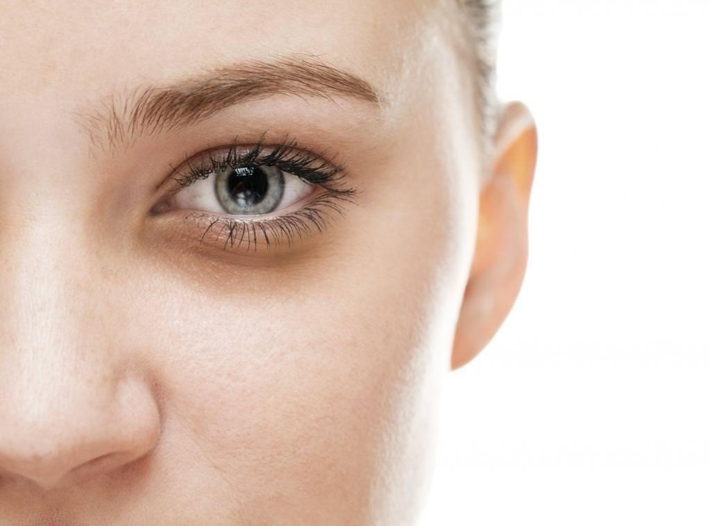 Почему под глазами появляются темные круги под глазами?