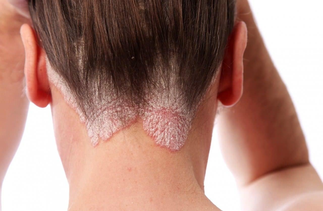 Выпадение волос: витамины обеспечивающие рост волос
