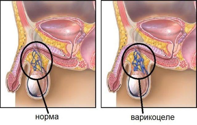 Может ли болеть яичко из за простатита тренировки при простатите