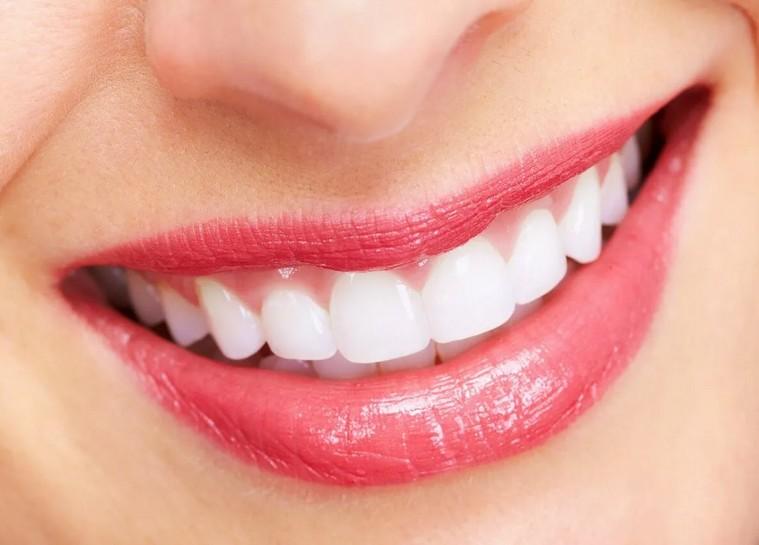 Современные средства для отбеливания зубов